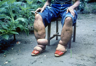 Elephantiasis gr by prep4md, flickr