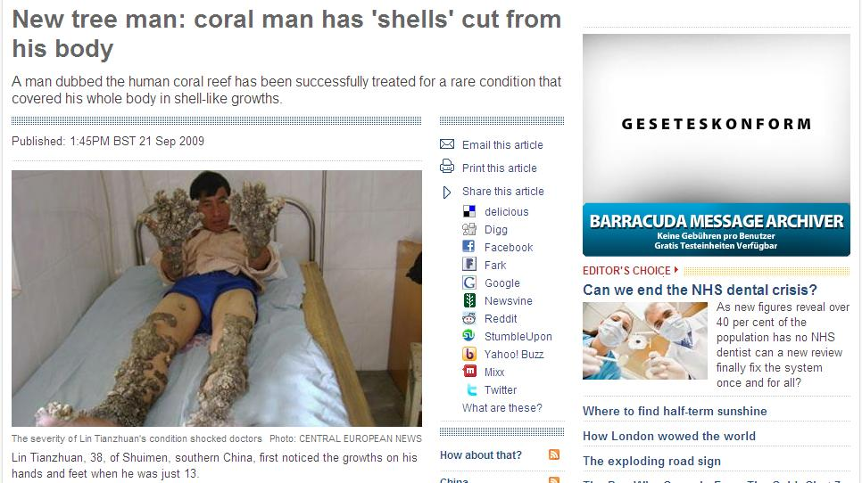 Screenshot: http://www.telegraph.co.uk/news/newstopics/howaboutthat/6214323/New-tree-man-coral-man-has-shells-cut-from-his-body.html